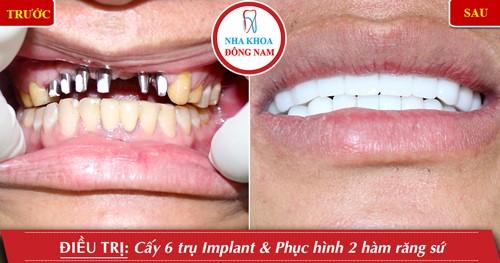 cấy 6 trụ implant hàm trên