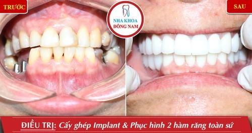 cấy ghép implant và phục hình sứ