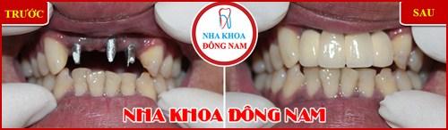 Cấy ghép răng Implant có đau không 10
