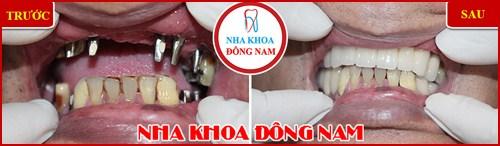 Cấy ghép răng Implant có đau không 11