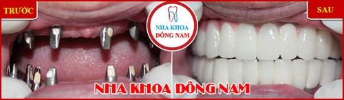 Cấy ghép răng Implant có đau không 12