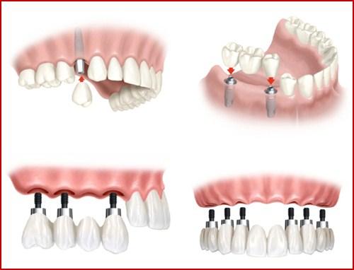 Cấy ghép răng Implant có đau không 3