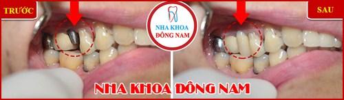 Cấy ghép răng Implant có đau không 7