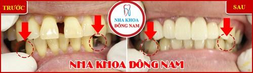 Cấy ghép răng Implant có đau không 8