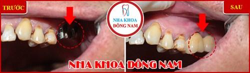 Cấy ghép răng Implant có đau không 9