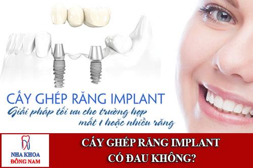 cấy ghép răng implant có đau không
