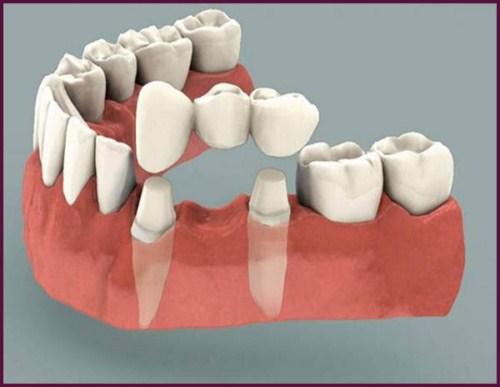 Làm cầu răng sứ loại nào TỐT? Quy trình làm cầu răng