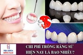 chi phí trồng răng sứ hiện nay là bao nhiêu