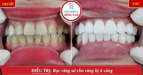 trồng răng sứ thẩm mỹ cho răng ố vàng