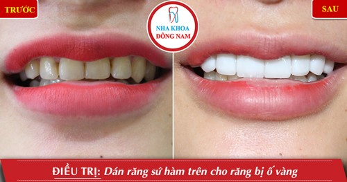 dán răng sứ hàm trên ố vàng
