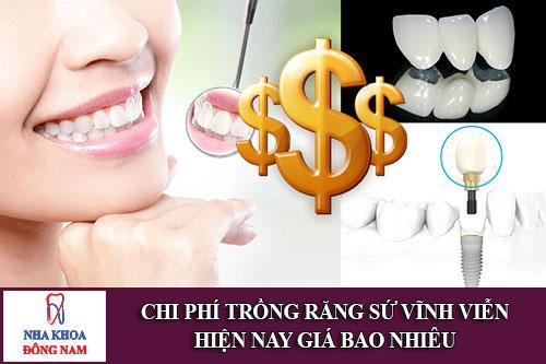 chi phí trồng răng sứ vĩnh viễn giá bao nhiêu