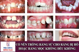 có nên trồng răng sứ cho răng bị hô hoặc răng mọc không đều không