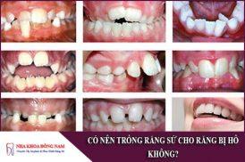 có nên trồng răng sứ cho răng bị hô không