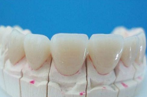 đặc điểm cơ bản của các loại răng giả hiện nay là gì 1