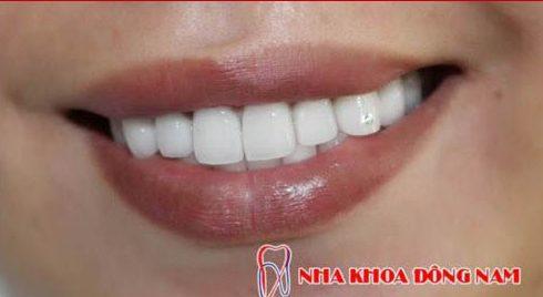 đặc điểm cơ bản của các loại răng giả hiện nay là gì 3