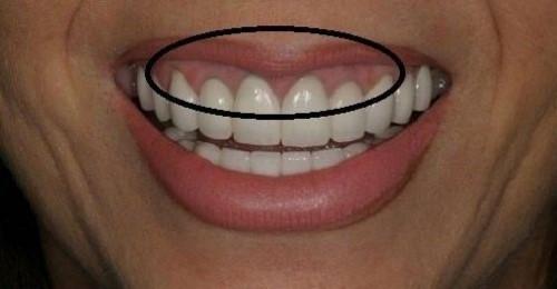 đặc điểm cơ bản của các loại răng giả hiện nay