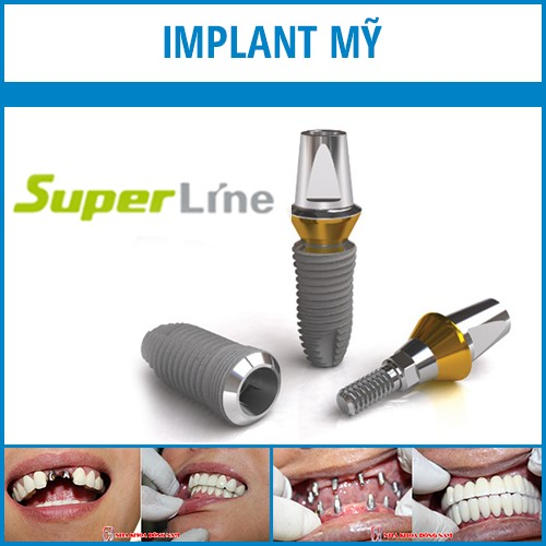 implant mỹ superline