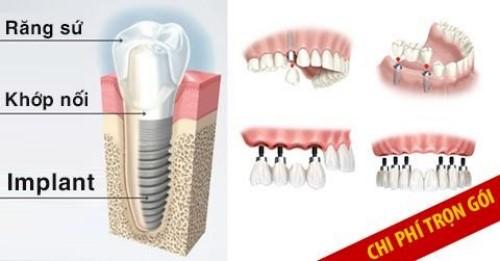đặc điểm của các loại răng implant hiện nay