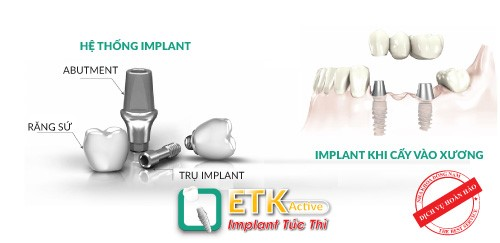 răng implant etk active