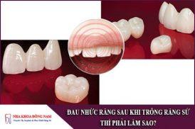 đau nhức răng sau khi trồng răng sứ thì phải làm sao