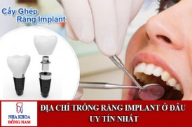 địa chỉ trồng răng implant ở đâu uy tín nhất