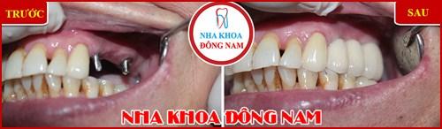 Địa chỉ trồng răng implant ở đâu tốt 8