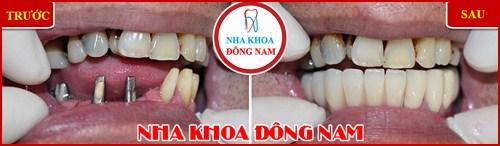 Địa chỉ trồng răng implant ở đâu tốt 9