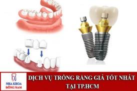 dịch vụ trồng răng giả tốt nhất tại tp.hcm