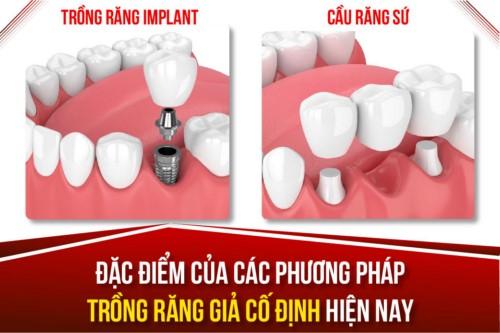 giải pháp làm răng giả cố định được ưa chuộng nhất hiện nay