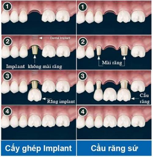 cấy ghép implant và cầu răng sứ