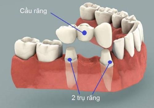 cấu tạo của cầu răng sứ