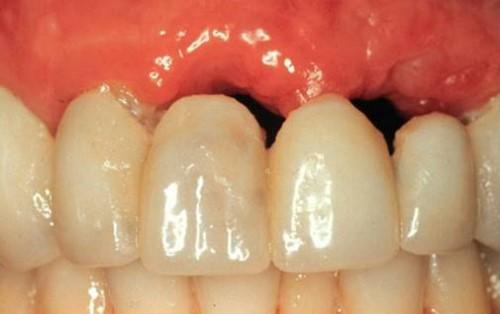 tiêu xương hàm khi sử dụng cầu răng sứ