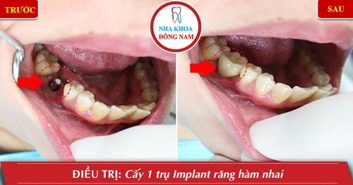 cấy 1 trụ implant răng nhai hàm dưới