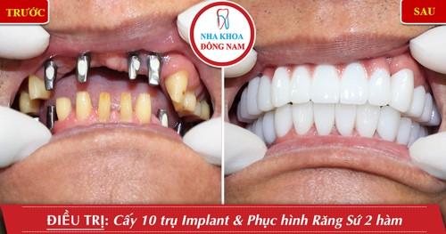 trồng răng implant và phục hình sứ 2 hàm