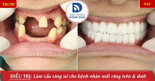 làm răng giả cố định bằng cầu răng sứ