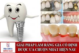 giải pháp làm răng giả cố định được ưa chuộn nhất hiện nay