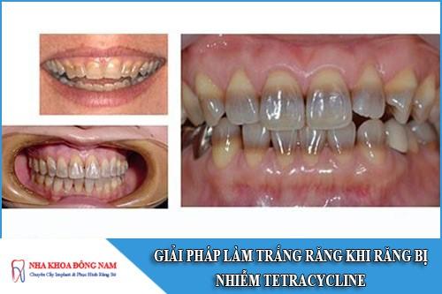 giải pháp làm trắng răng khi răng bị nhiễm tetracycline