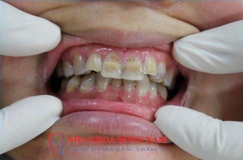 giải pháp làm trắng răng khi răng bị nhiễm tetracycline 1