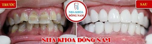 bọc răng sứ 2 hàm răng bị nhiễm tetracycline