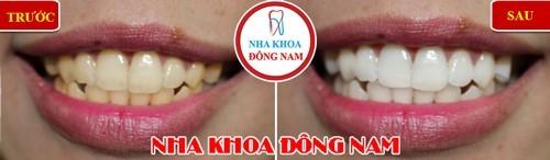 tẩy trắng răng bị nhiễm kháng sinh nhẹ