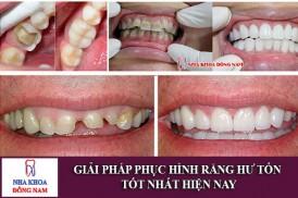 giải pháp phục hình răng hư tổn tốt nhất hiện nay