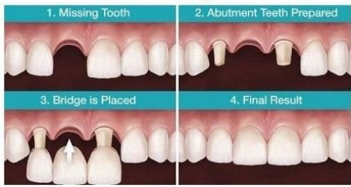 phục hình răng hư tổn
