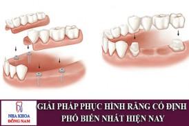 giải pháp phục hình răng cố định phổ biến nhất hiện nay