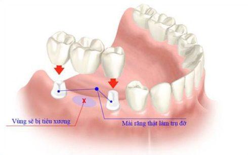 Giải pháp phục hình răng cố định phổ biến nhất hiện nay Giai-phap-phuc-hinh-rang-su-co-dinh-pho-bien-nhat-hien-nay-4-e1531195858535