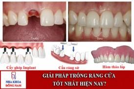 giải pháp trồng răng cửa tốt nhất hiện nay