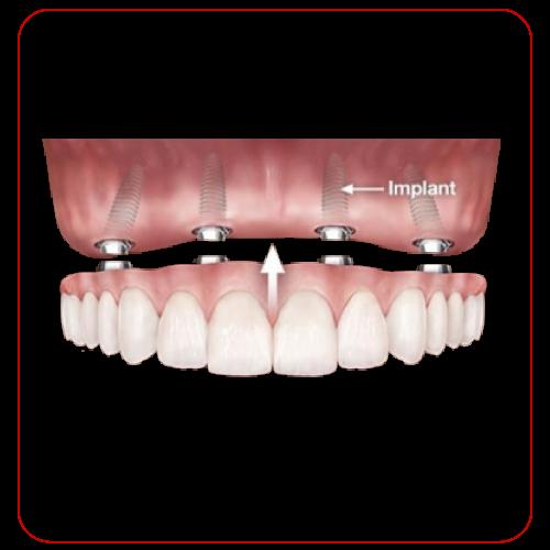 Implant all on 4 cố định tại nha khoa Đông Nam