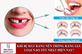 khi bị mất răng nên trồng răng giả loại nào tốt nhất hiện nay