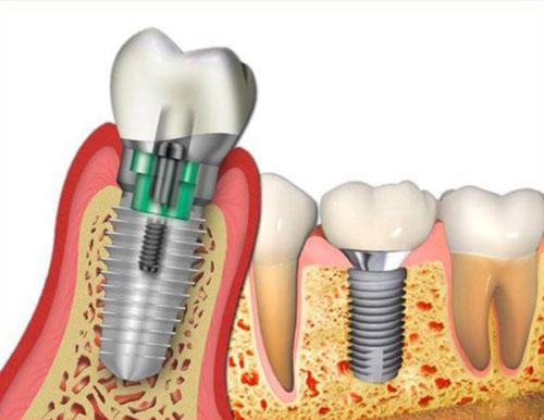khi nào Trồng răng Implant cần cấy ghép xương 1