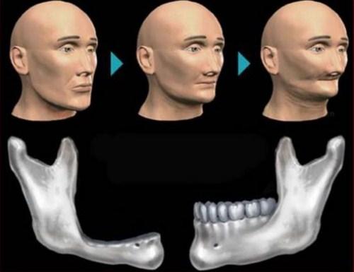khi nào Trồng răng Implant cần cấy ghép xương 2