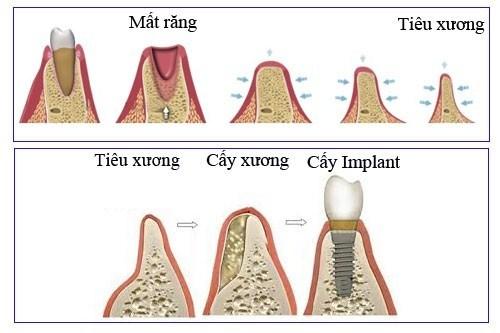 khi nào Trồng răng Implant cần cấy ghép xương 4